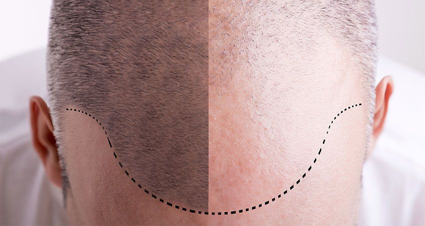 Benefits of fue hair transplant - hair transplant turkey - follicular unit extraction